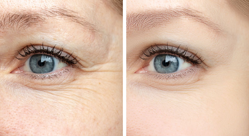 Collagen Helps with Wrinkles Around the Eyes