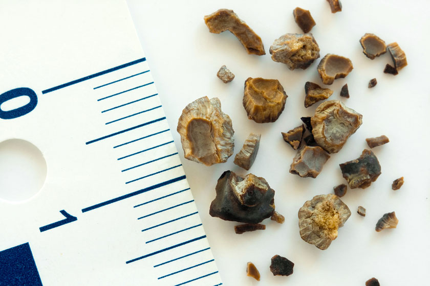 Kidney Stone Home Remedies - Various Sizes
