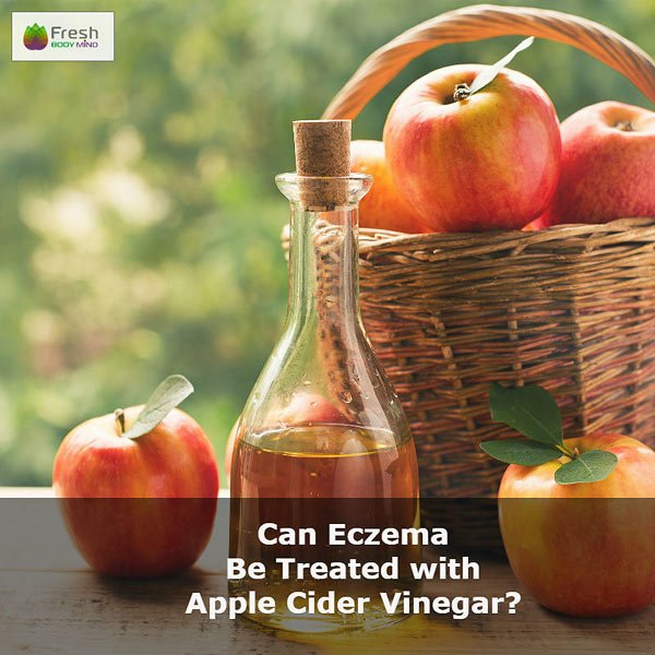 Can Eczema Be Treated with Apple Cider Vinegar?